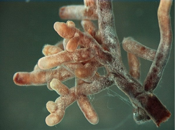Root tips showing mycorrhizal fungi (the white coating)